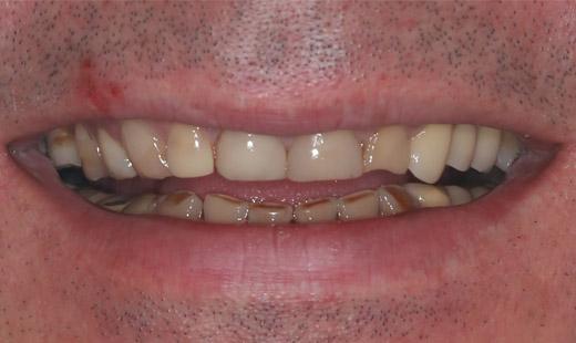 Генерализованная стираемость зубов