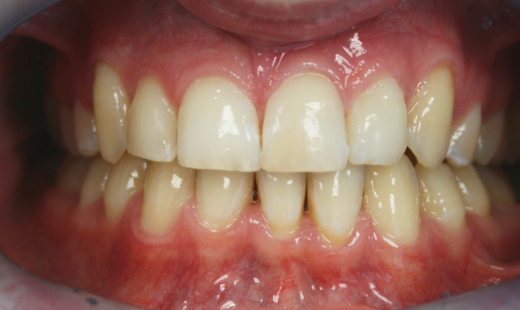 Вестибулярное супраположение клыков верхней челюсти